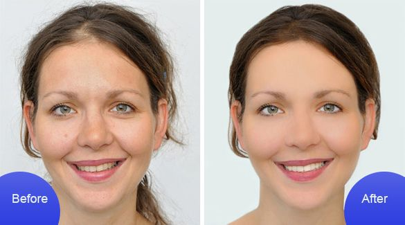 before-after smile